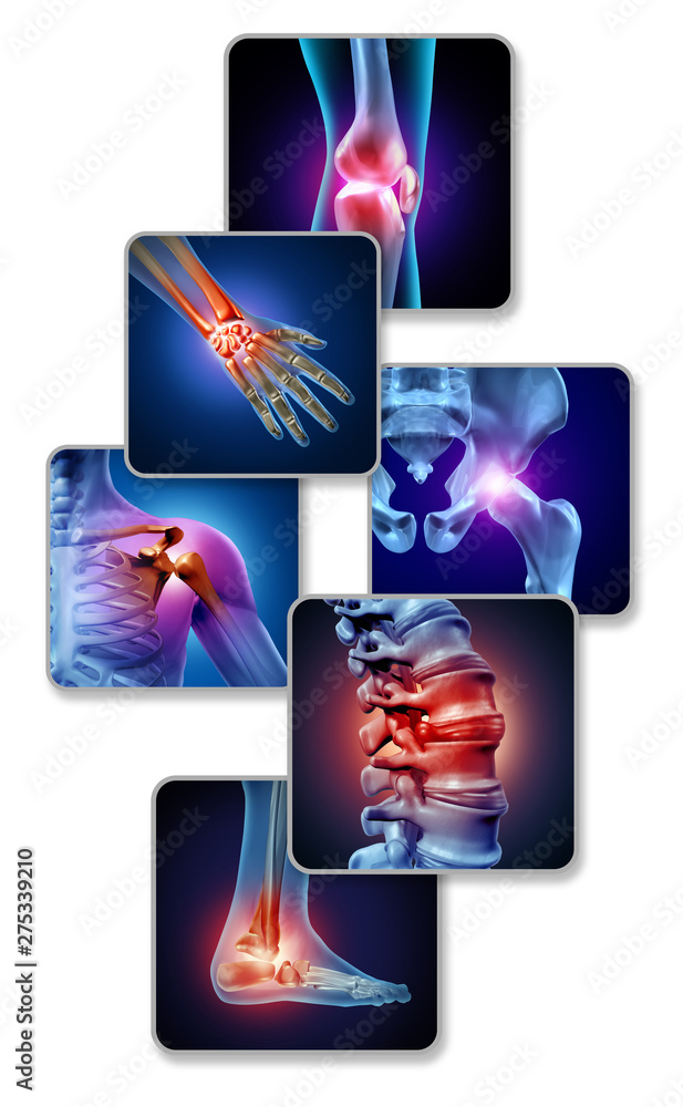 Fototapety, obrazy: Human Joint Pain