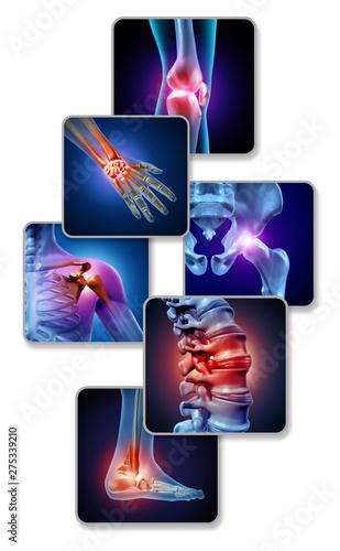Fotografie, Obraz Human Joint Pain