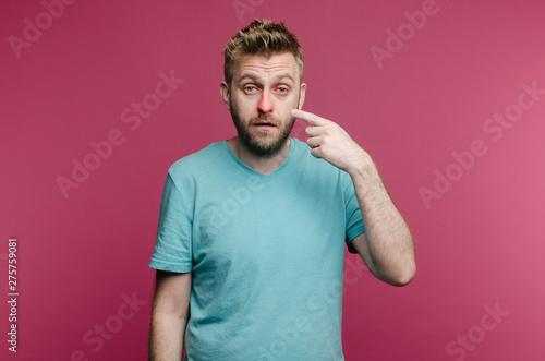Valokuva  Sick guy isolated has runny nose