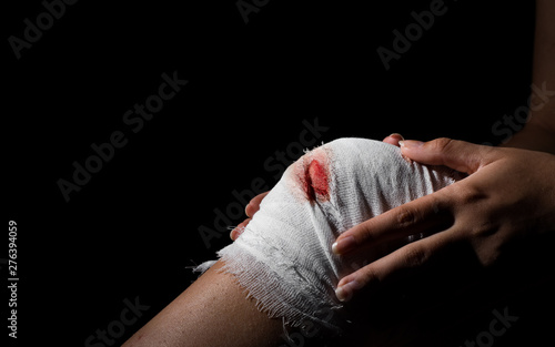 Obraz na plátně Injured knee with white bloody gauze bandage on dark black background