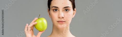panoramic shot of young woman with acne on face holding green apple isolated on Canvas Print