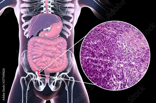 Photo Acute appendicitis, 3D illustration of human body with inflammed appendix and li
