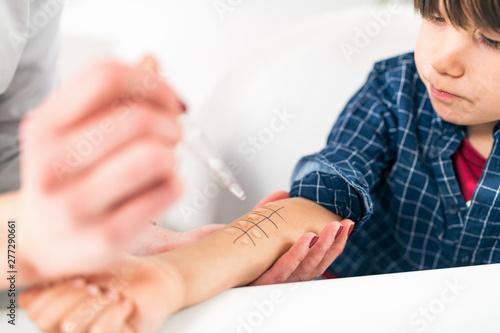 Cuadros en Lienzo Allergy - Skin Prick Testing