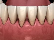 Gum Recession Process. Medical...