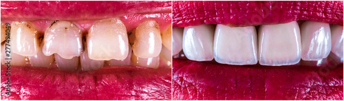 Valokuva  14 unit zirkon based press ceramic crowns , before and after the treatment