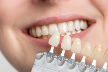 Using Shade Guide At Woman's Mouth To Check Veneer Of Teeth For Bleaching