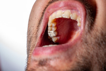 Temporary Filling Of A Tooth Caries Patient