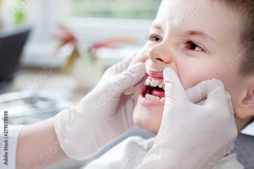 Sprawdzanie stanu zębów u dziecka. Dłonie lekarza w białych rękawiczkach przesuwają dziąsła i odsłaniają  białe zęby chłopca.