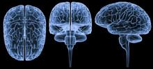 Human Brain-3 Views