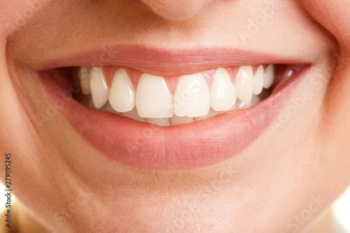 Open mouth with perfect white teeth Canvas-taulu