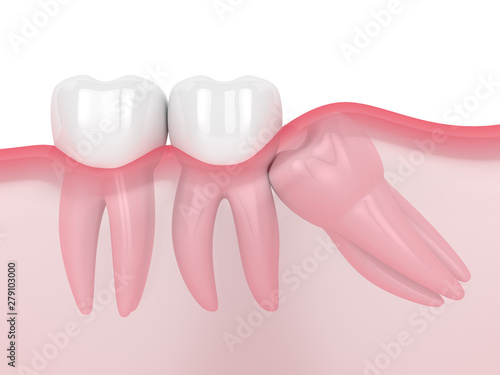 Fotografía 3d render of jaw with wisdom mesial impaction