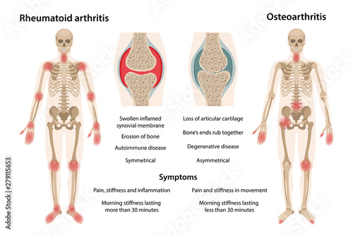 MobileThe difference between rheumatoid arthritis and osteoarthritis Canvas Print