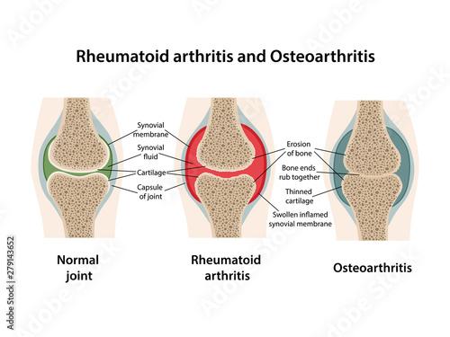 Photo Rheumatoid arthritis and osteoarthritis of the joint