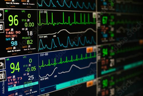 Fotografiet Modern vital signs monitor display at ICU in hospital.