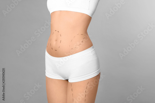 Fényképezés  Young woman with marks on body for cosmetic surgery operation against grey backg