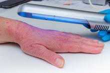 Phototherapy Dermatosis. Treat...