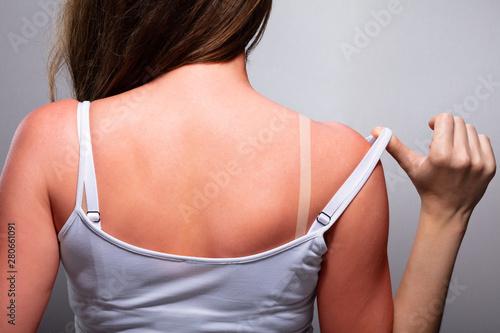 Obraz Woman with sunburn - fototapety do salonu