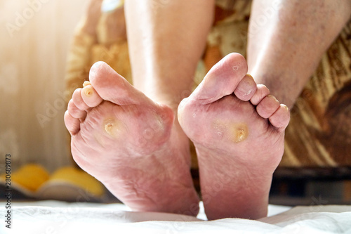 Fotografie, Tablou  An elderly woman feet with podagra, fungus and diabetic ucler, callus