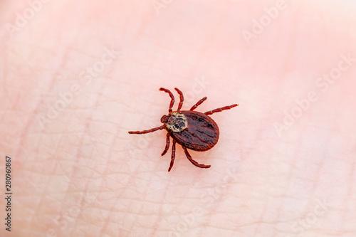 Tablou Canvas Encephalitis Virus or Lyme Borreliosis Disease Infectious Dermacentor Tick Arach