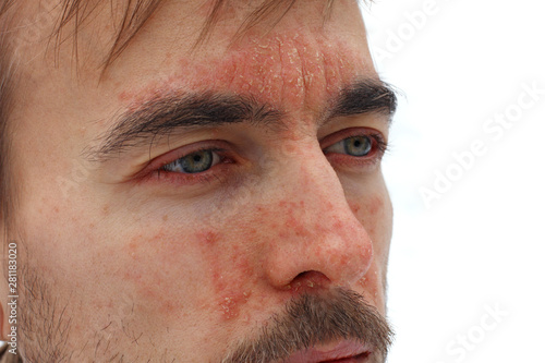 head of sick man with red allergic reaction on facial skin