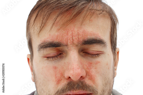 head of sick man with closed eyes with red allergic reaction