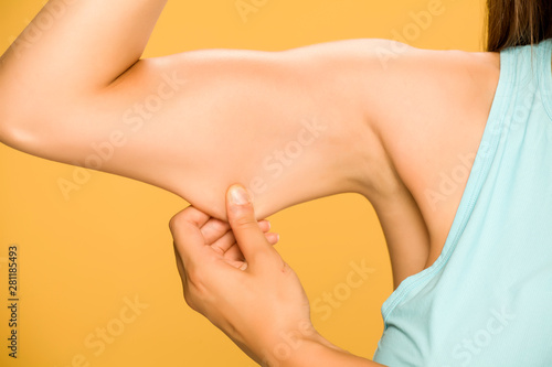 Young woman pinching fat on her hand on yellow background Canvas-taulu
