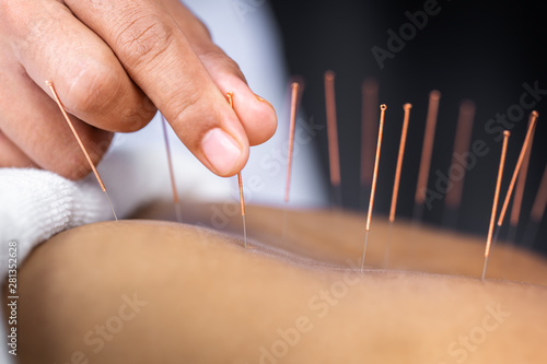 Close-up of senior female back with steel needles during procedure of acupunctur Canvas Print