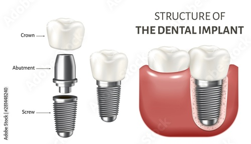 Medical vector illustration showing a structure of the dental implant Wallpaper Mural