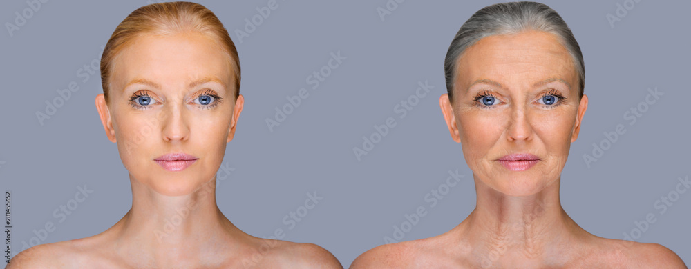 Fototapeta     Comparison. Portrait of beautiful woman with problem and clean skin, aging and youth concept, beauty treatment