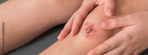 Obraz Injured leg wound knee with blood and doctor's hands in blue medical gloves treats a patient, treats a wound - fototapety do salonu
