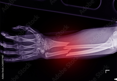 X-ray forearm fracture shaft of radius and ulnar bone Fototapet