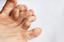 Deformed Toes After Multiple Fractures. Swelling Of The Joints Of The Toes. Painful Gout Inflammation On Toe Joints, Selective Focus. Gouty Toes. Toes Affected By Gout .