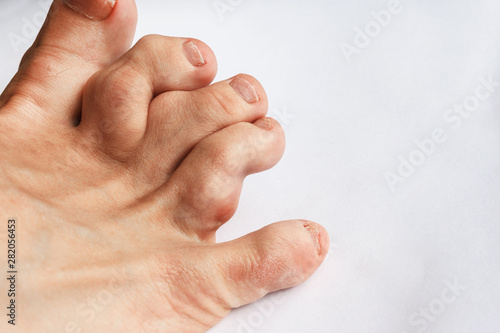 deformed toes after multiple fractures Fototapeta