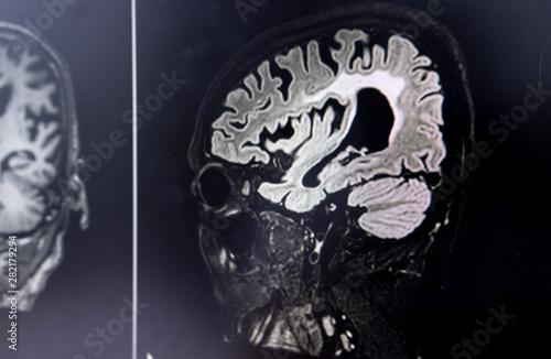 Wall Murals Watercolor Skull brain MRI for education Dementia Mix type stroke VaD