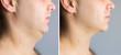 Leinwandbild Motiv Man before and after double chin fat correction procedure