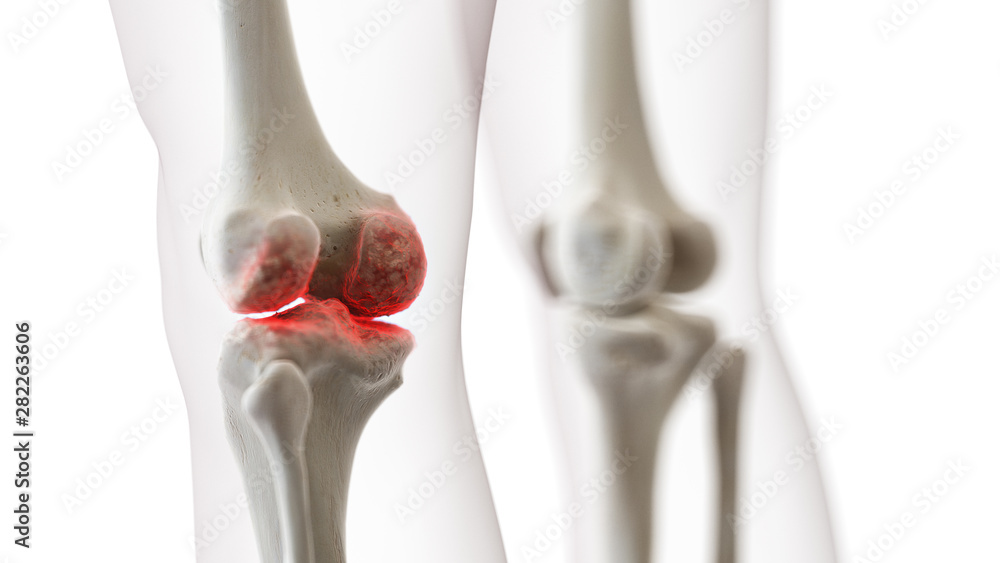 Fototapety, obrazy: 3d rendered medically accurate illustration of an arthritic knee joint