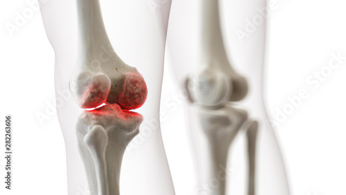 Photo  3d rendered medically accurate illustration of an arthritic knee joint