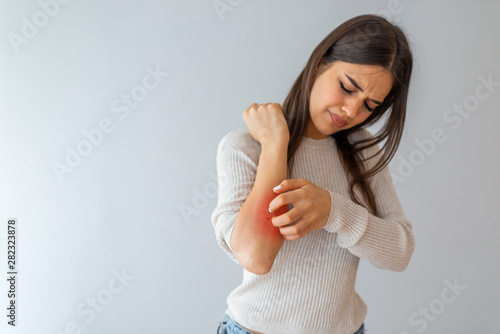 Health problem, skin diseases Fototapete
