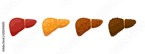 Stages human liver damage concept Wallpaper Mural