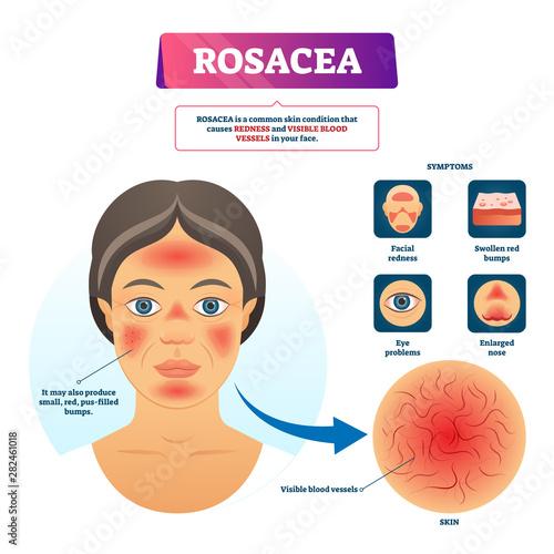 Fotografie, Obraz Rosacea vector illustration