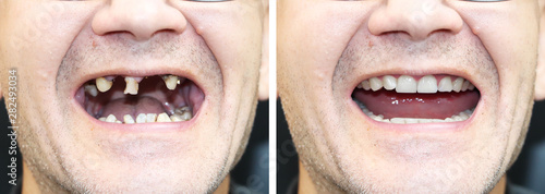 The patient at the orthodontist before and after the installation of dental implants Fototapete