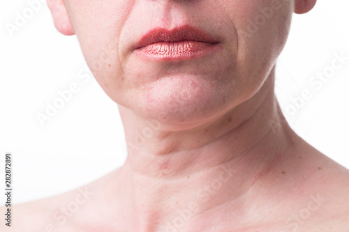 Foto Furrowed lips of a mature woman.Signs of aging skin after 40