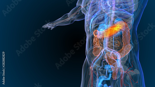 Carta da parati  3d rendered illustration of  bowel cancer 3D illustration