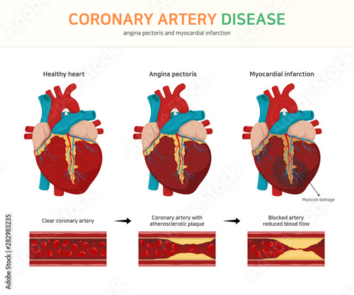 Photo coronary artery disease