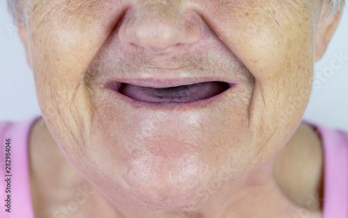 Toothless mouth Fototapeta