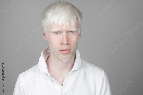 Fotografie, Obraz  portrait of an albino man in  studio dressed t-shirt isolated on a white background