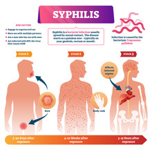 Syphilis Vector Illustration. ...