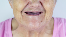 Toothless Mouth. An Elderly Wo...