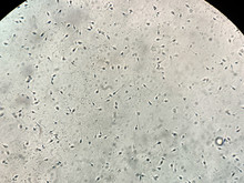 View At Human Sperm Under Microscope In Lab