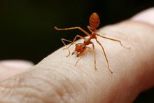 Red Ant Bite Skin Human Backgr...